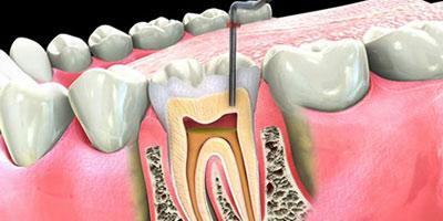 Tand gør ondt rodbehandlet Rodbehandling i